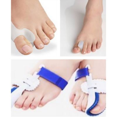 hallux valgus advantage package all products pictured