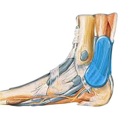 novamed achilles tendon support explanation